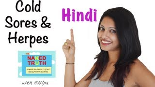 What are Herpes and Cold Sores- Hindi