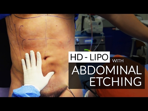 "Hi Definition Liposculpture / Liposuction / Abdominal Etching / ""Six Pack"" Surgery By Dr. Jason Emer"