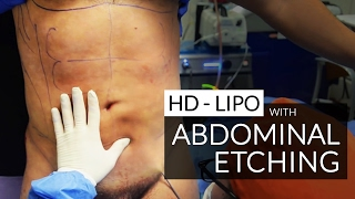"Hi Definition Liposculpture / Liposuction / Abdominal Etching / ""Six Pack"" Surgery By Dr. Jason Emer"