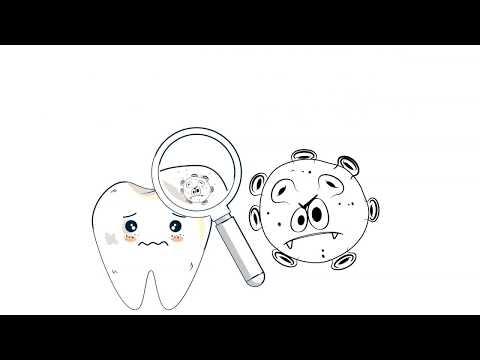 Springbank Dental - How Cavities Form.