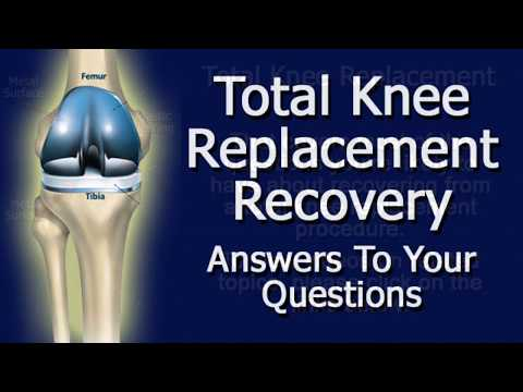 Total Knee Replacement Recovery - Answers To Your Questions