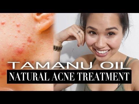 Tamanu Oil   Natural Acne Treatment