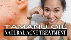 hqdefault - Benefits Of Tamanu Oil On Acne