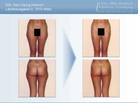 Fettabsaugung mit Mikrokanülen in der Ordination Clinic DDr. Heinrich®