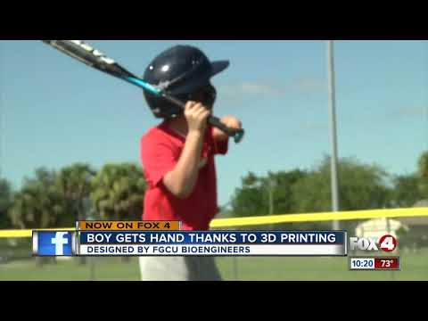 Boy gets a hand thanks to 3D printing