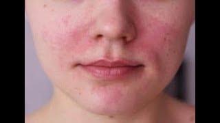 Da mặt bị ngứa và nổi sần phải làm sao