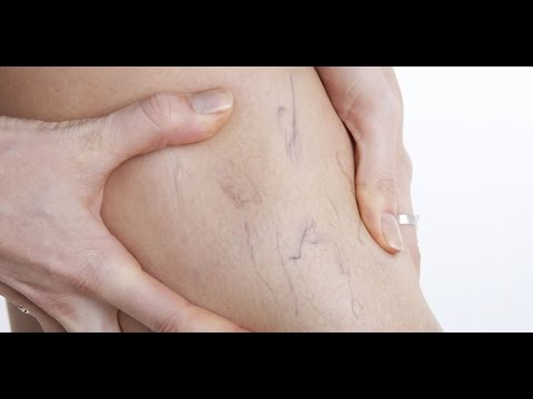 Lunas sa Arthritis (Osteo-arthritis) - Payo ni Dr Willie Ong #88 from YouTube · Duration:  4 minutes 53 seconds