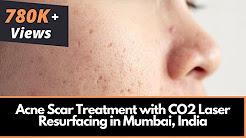 hqdefault - Remove Acne Scars India