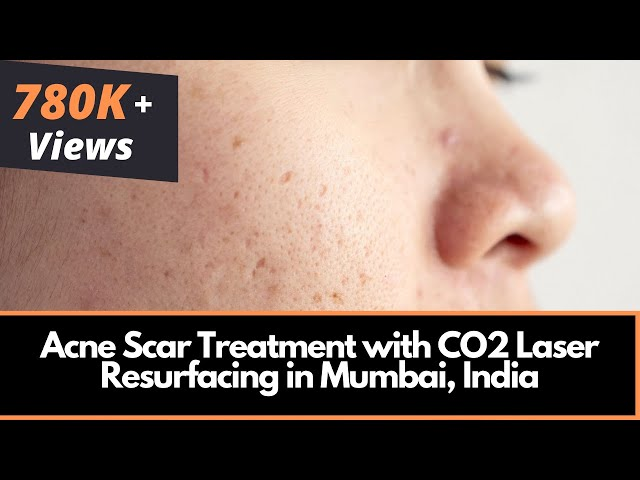Advise low cost facial resufacing
