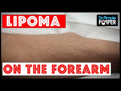 A Single, Noticeable Lipoma on Forearm
