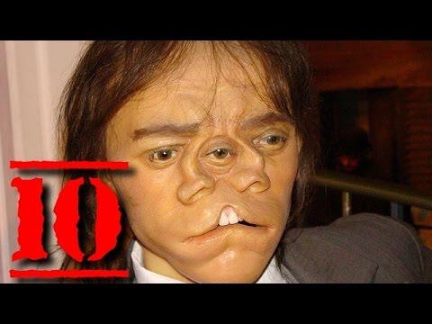 TOP 10 PERSONE CON MUTAZIONI GENETICHE DIVENTATE FAMOSE