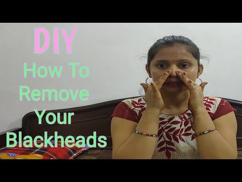 DIY ।। How To Remove Blackhead ।। Home Remedies