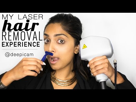 My Experience w/ Laser Hair Removal for Dark Skin (Part 1) || Deepica Mutyala