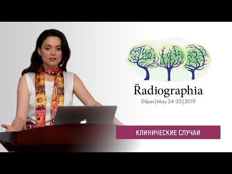 Ирина Трофименко. Когда звонит нейрохирург - подборка случаев