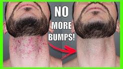 hqdefault - Pimples On The Neck After Shaving