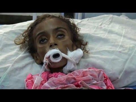 ديدان تفتك بطفلة في اليمن Youtube