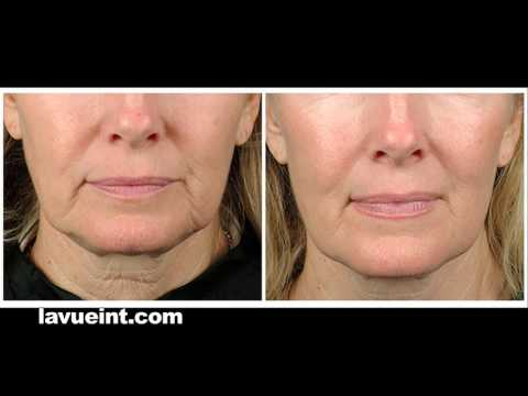LaVue International Medical Aesthetics and Laser Center Beaumont Texas