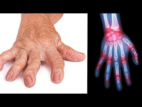 Diese 3.000 Jahre alte Technik hilft bei der Behandlung von Rheumatoider Arthritis und Entzündung!