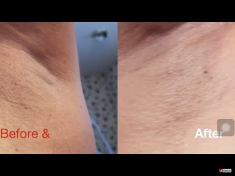 How to remove armpit darkness in 5 minutes | NeeCJae