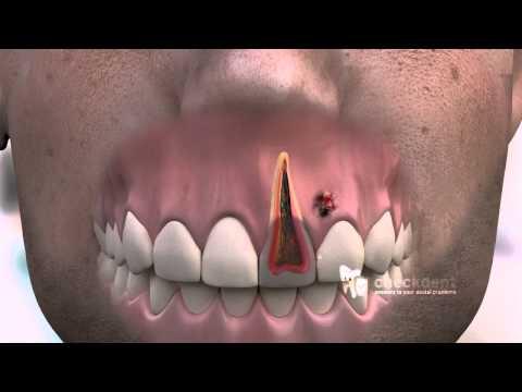 How to treat a dental Fistula