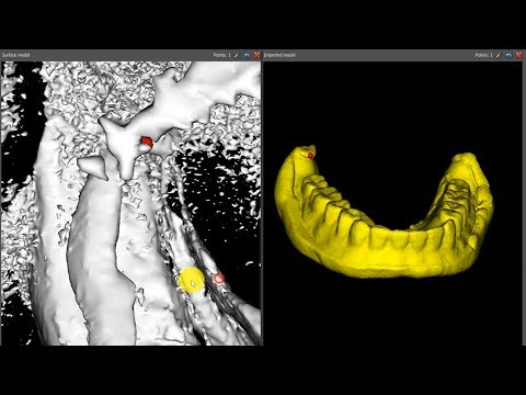 Repeat Generating an STL Model from a CBCT Scan of an