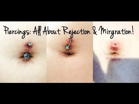 Piercings: All About Rejection & Migration.