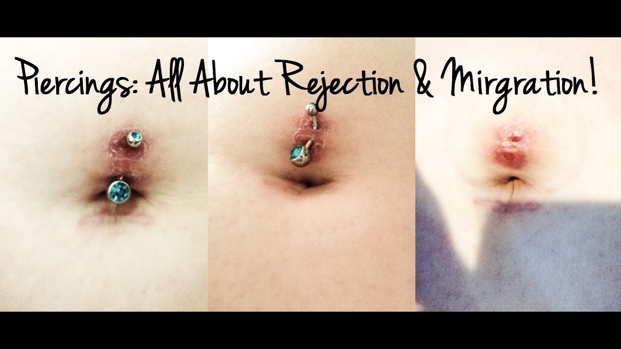 Piercings All About Rejection Migration