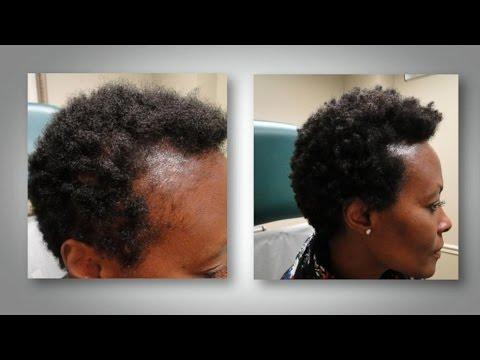traitement chute de cheveux femme africaine