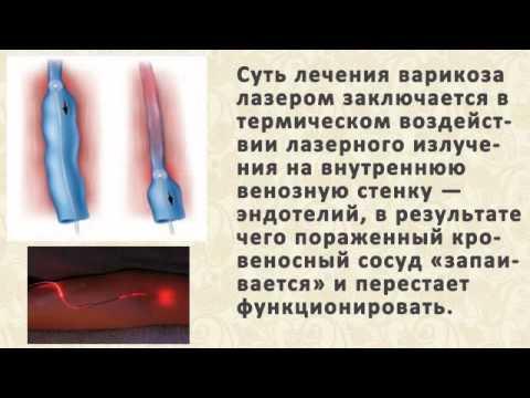 УЗИ брюшной полости - цены в Москве