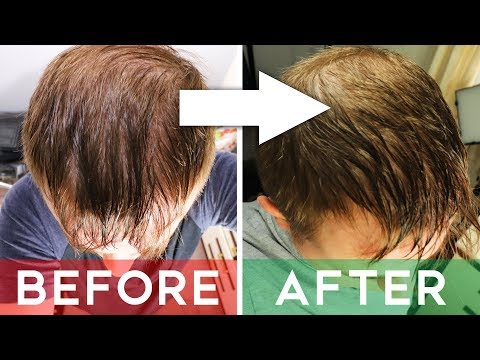 Finasteride Review - Does It Cure Hair Loss? | Finasteride Before And After 8 Months