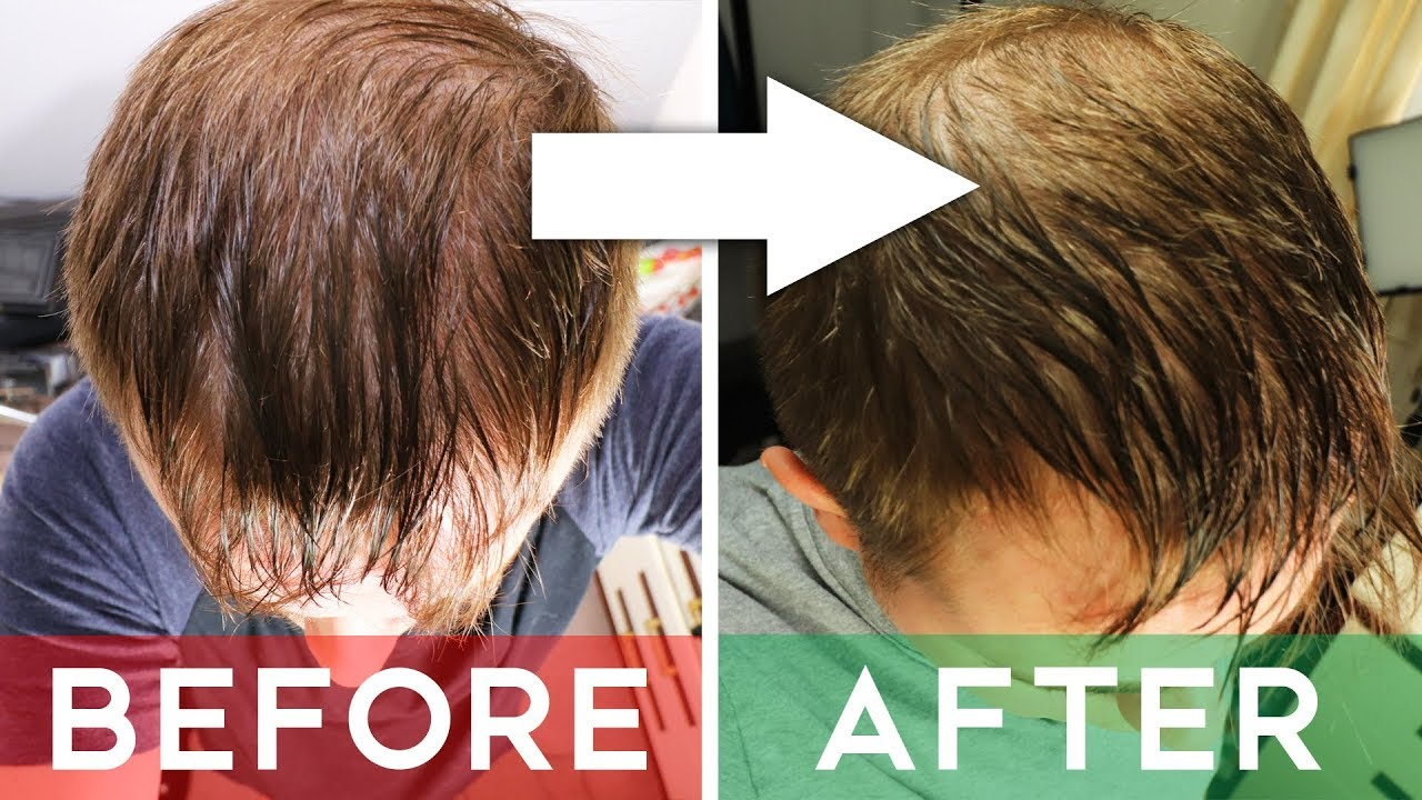 Finasteride Review Does It Cure Hair Loss Finasteride Before And After 8 Months Youtube