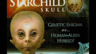 Starchild Skull and Hominoids 6 of 12