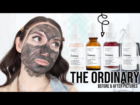 THE ORDINARY SKINCARE - How To Get Rid Of ACNE, ACNE SCARS & DARK SPOTS | BEFORE & AFTER PICTURES