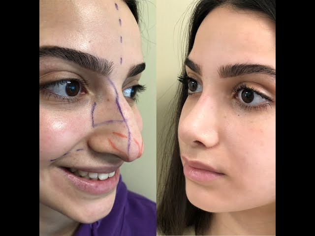 Celebritynose   before and 7 days after