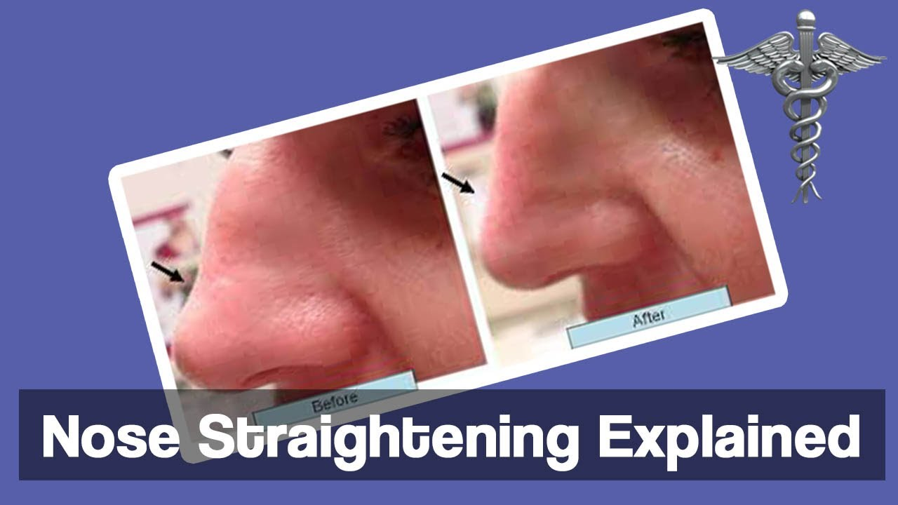 how to make your nose straight without surgery