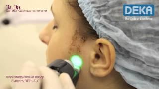 Лазерная эпиляция лица александритовым лазером видео