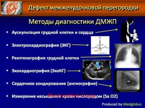 Гипертрофия мжп
