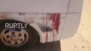Egypt: Bus spattered with blood after gunman attack leaves 28 dead *GRAPHIC*