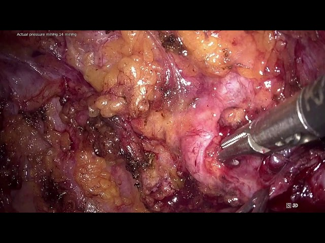 Antonio Rosales - Laparoscopic Right Ureteral Reimplantation in Kidney Transplant