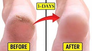 ఇది రాస్తే మీ కాళ్లలోపగుళ్లు వెంటనే పోతాయి || Beauty Tips for Cracked Feet