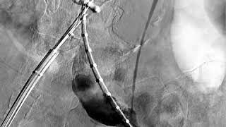 Tomografia de rotura de aneurisma de aorta abdominal, com extenso hematoma retroperitoneal. Tomograp.