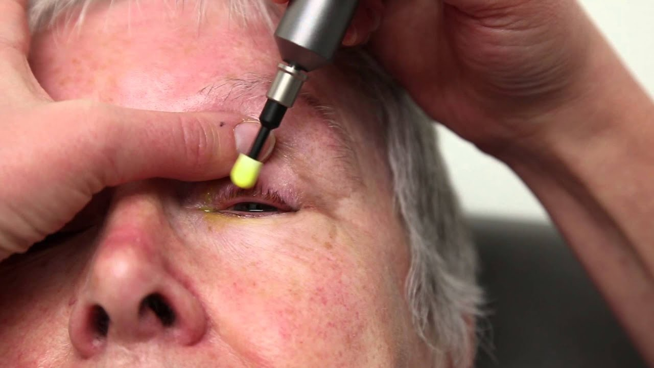 Blepharitis Treatment That Really Works Blephex Eyelid Cleaning