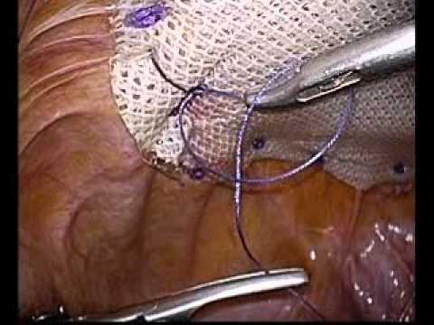 腹壁瘢痕ヘルニアにたいする腹腔鏡手術 Laparoscopic incisional herni