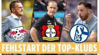 Bayer, Schalke & RB: Darum sind die Top-Klubs so mies gestartet