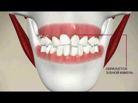 Выравнивание зубов, керамические, лингвальные, металлические и сапфировые брекеты