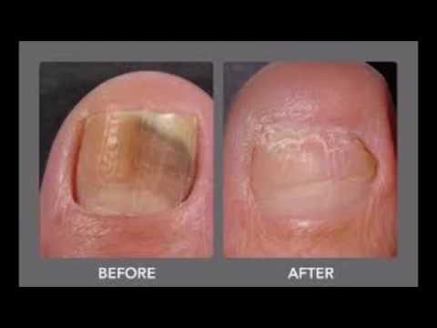 Cured Toenail Fungus With Cheap Treatment As Vicks Vaporub