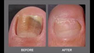 Cured Toenail Fungus With Cheap Treatment As Vicks Vaporub