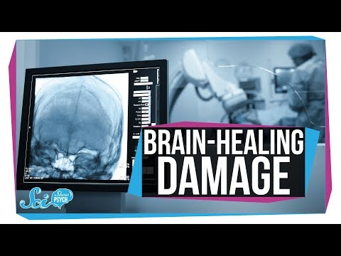 To Heal the Brain, Sometimes We Need to Damage It