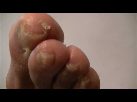 Home remedies for athelet's foot | Cure athletes foot