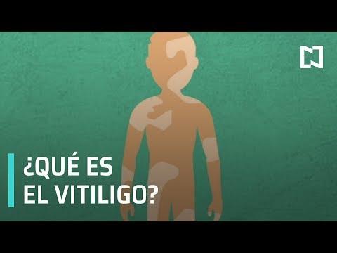 ¿Qué es el vitíligo? - Noticias MX